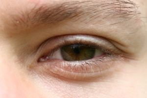 Macular degeneration cure